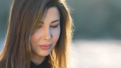صورة نانسي عجرم تكشف طبيعة مرضها