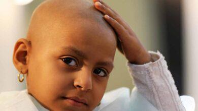 صورة ما حكم التبرع بالشعر لمرضى السرطان؟