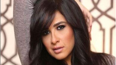 صورة طبيب ياسمين عبد العزيز يكشف آخر تطورات حالتها الصحية