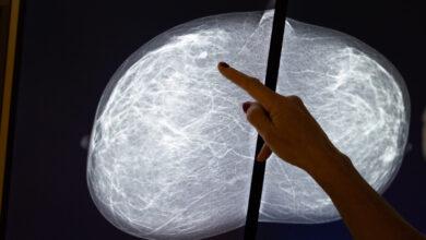 صورة علماء أستراليون يكتشفون نقطة ضعف سرطان الثدي